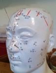 Acupuncture Dementia